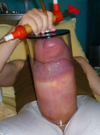 The world record for the vacuum pumping of cock is up to 62 cm long