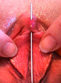Professional close-up video shot of a clit puncture with a long and blunt needle
