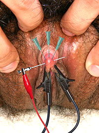 The Master pierced the clitoris with several needles and then passed a current through them