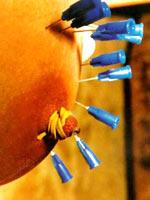 Needle comport oneself practice be incumbent on tits